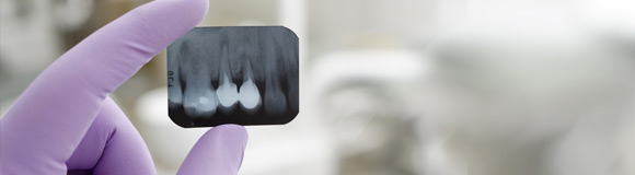 Kanal Tedavisi | Diş Tedavi Yöntemleri | Onur Öztürk