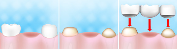 Protez Kron ve Köprü | Diş Tedavi Yöntemleri | Onur Öztürk