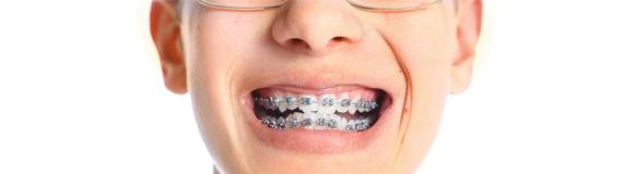 Ortodonti | Diş Tedavileri | Onur Öztürk