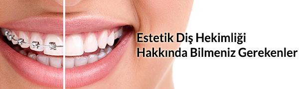 Estetik-Dis-Hekimligi-Hakkinda