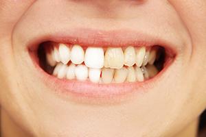 Diş Plağından Korunmanın Yolları | Onur Öztürk